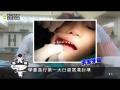 國小學童臼齒窩溝封填服施作流程介紹 - YouTube